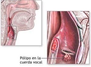 polipo_cuerda_vucal